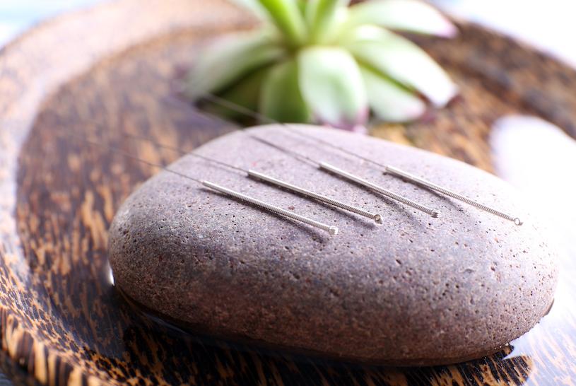 Aiguilles d'acupuncture